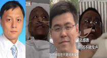 China doctors skin done tuned to black