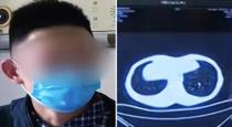 Chinese man who gobbled live snakes now has lungs riddled with worms