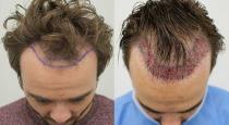 Man death after hair transplant